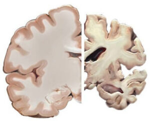 Cross section of a healthy brain (left) and a brain with severe Alzheimer's disease (right)